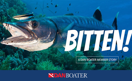 DAN Boater COO bitten by barracuda in Caymans