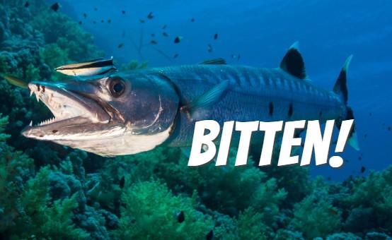 DAN Boater COO bitten by barracuda in Caymans