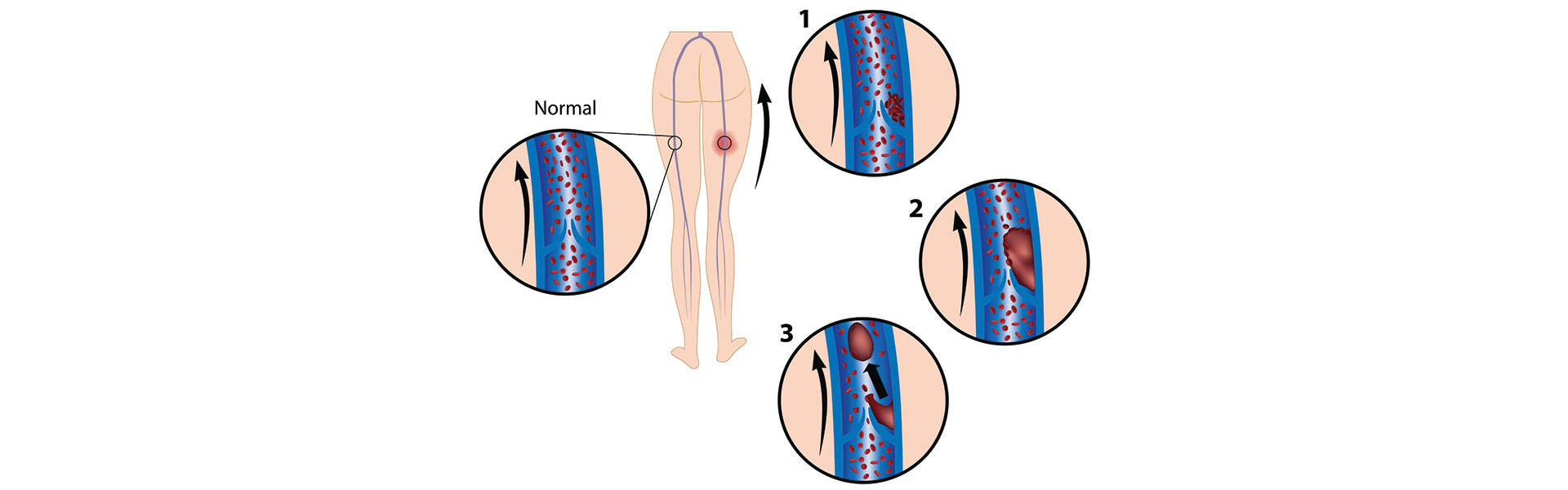 Evaluation and treatment of penile thrombophlebitis